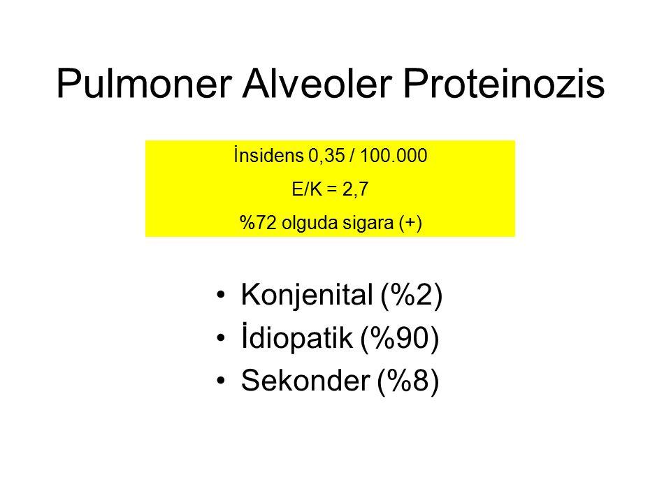 Pulmoner Alveoler Proteinozis Konjenital (%2) İdiopatik (%90) Sekonder (%8) İnsidens 0,35 / 100.000 E/K = 2,7 %72 olguda sigara (+)