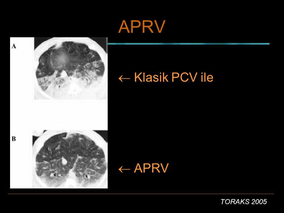 TORAKS 2005 APRV  Klasik PCV ile  APRV