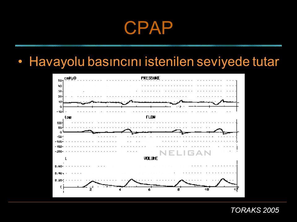 TORAKS 2005 CPAP Havayollarını açık tutar Hasta istediği gibi solur Inspirasyonda, set edilen değerde destek olur.