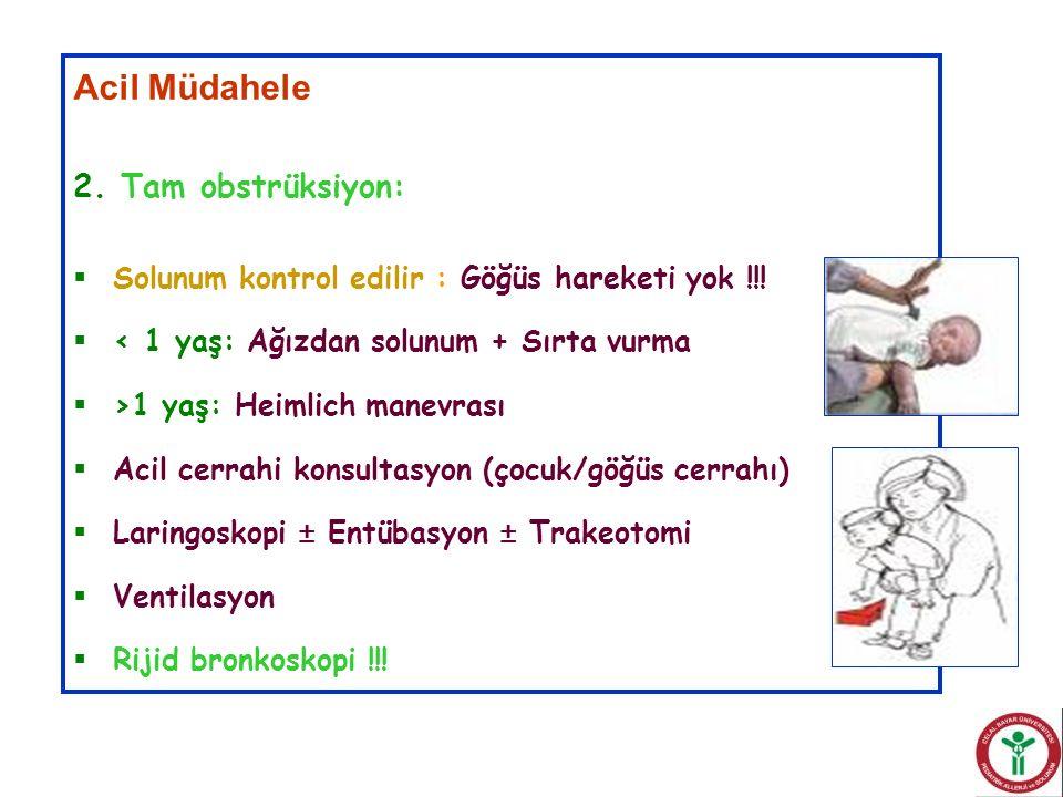 Acil Müdahele 2. Tam obstrüksiyon:  Solunum kontrol edilir : Göğüs hareketi yok !!!  < 1 yaş: Ağızdan solunum + Sırta vurma  >1 yaş: Heimlich manev