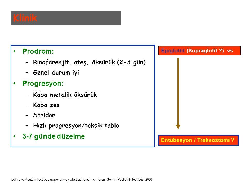 Prodrom: –Rinofarenjit, ateş, öksürük (2-3 gün) –Genel durum iyi Progresyon: –Kaba metalik öksürük –Kaba ses –Stridor –Hızlı progresyon/toksik tablo 3-7 günde düzelme Klinik Epiglottit (Supraglotit ?) vs Entübasyon / Trakeostomi .