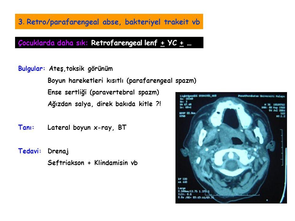 3. Retro/parafarengeal abse, bakteriyel trakeit vb Bulgular: Ateş,toksik görünüm Boyun hareketleri kısıtlı (parafarengeal spazm) Ense sertliği (parave