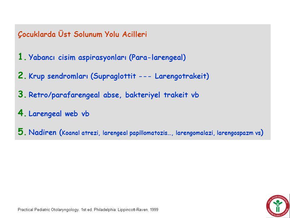 Çocuklarda Üst Solunum Yolu Acilleri 1. Yabancı cisim aspirasyonları (Para-larengeal) 2. Krup sendromları (Supraglottit --- Larengotrakeit) 3. Retro/p