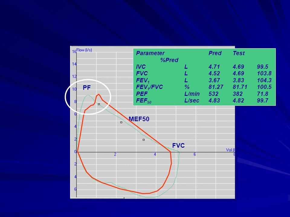 PF MEF50 FVC ParameterPredTest %Pred IVCL4.714.6999.5 FVCL4.524.69103.8 FEV 1 L3.673.83104.3 FEV 1 /FVC%81.2781.71100.5 PEFL/min53238271.8 FEF 50 L/se