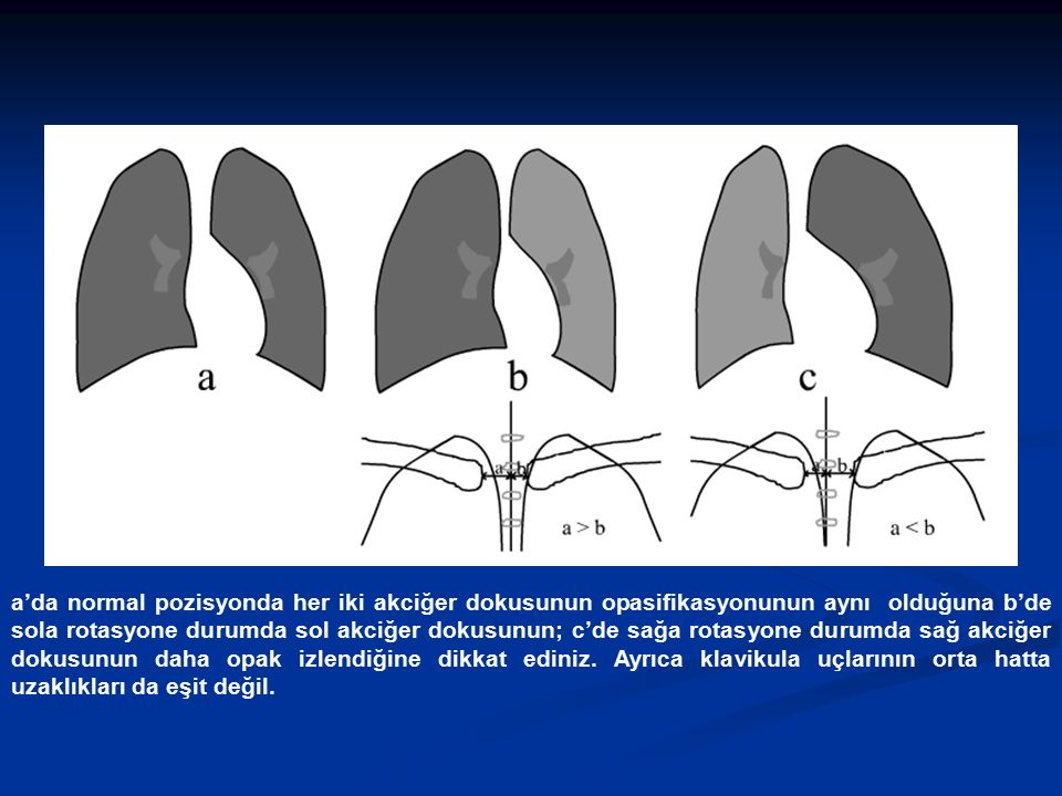 a'da normal pozisyonda her iki akciğer dokusunun opasifikasyonunun aynı olduğuna b'de sola rotasyone durumda sol akciğer dokusunun; c'de sağa rotasyon