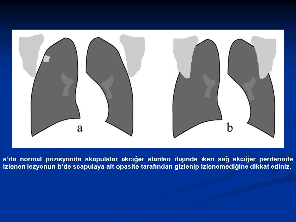 a'da normal pozisyonda skapulalar akciğer alanları dışında iken sağ akciğer periferinde izlenen lezyonun b'de scapulaya ait opasite tarafından gizleni