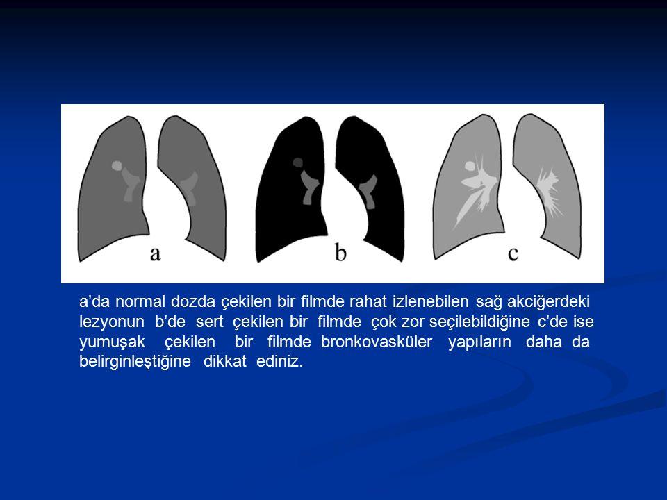 a'da normal dozda çekilen bir filmde rahat izlenebilen sağ akciğerdeki lezyonun b'de sert çekilen bir filmde çok zor seçilebildiğine c'de ise yumuşak