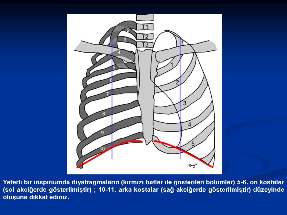 Yeterli bir inspiriumda diyafragmaların (kırmızı hatlar ile gösterilen bölümler) 5-6. ön kostalar (sol akciğerde gösterilmiştir) ; 10-11. arka kostala