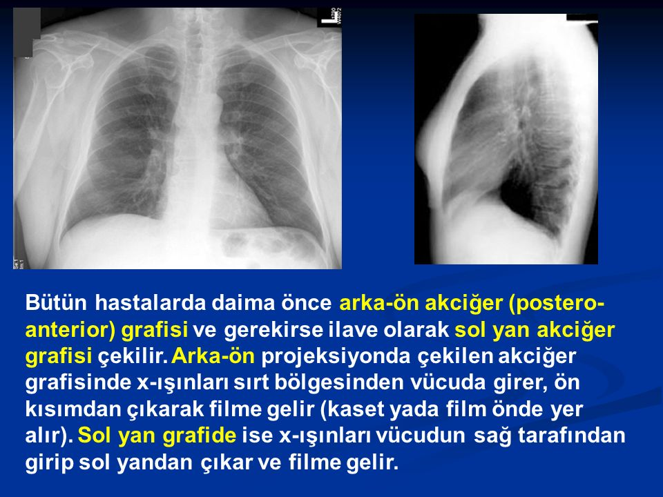 Bütün hastalarda daima önce arka-ön akciğer (postero- anterior) grafisi ve gerekirse ilave olarak sol yan akciğer grafisi çekilir. Arka-ön projeksiyon