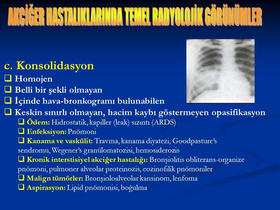 c. c. Konsolidasyon  Homojen  Belli bir şekli olmayan  İçinde hava-bronkogramı bulunabilen  Keskin sınırlı olmayan, hacim kaybı göstermeyen opasif