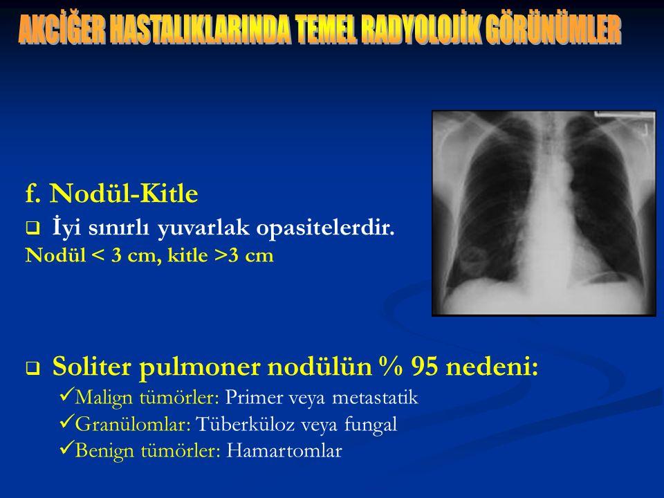 f. Nodül-Kitle  İyi sınırlı yuvarlak opasitelerdir. Nodül 3 cm  Soliter pulmoner nodülün % 95 nedeni: Malign tümörler: Primer veya metastatik Granül