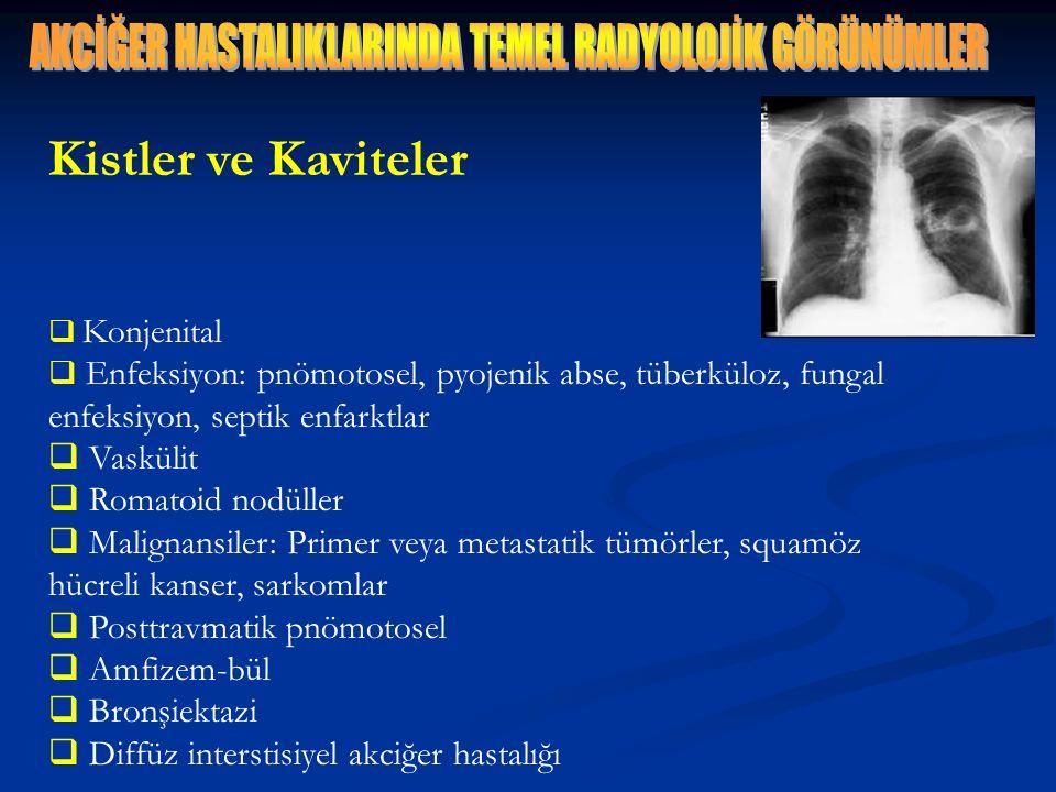 Kistler ve Kaviteler  Konjenital  Enfeksiyon: pnömotosel, pyojenik abse, tüberküloz, fungal enfeksiyon, septik enfarktlar  Vaskülit  Romatoid nodü