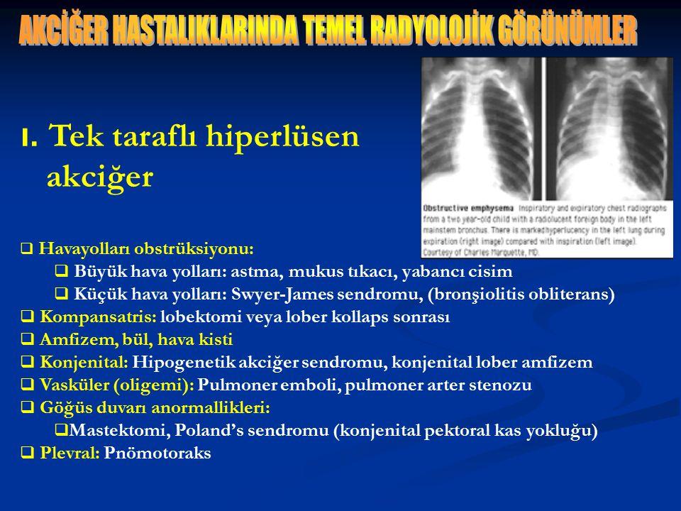 ı. Tek taraflı hiperlüsen akciğer  Havayolları obstrüksiyonu:  Büyük hava yolları: astma, mukus tıkacı, yabancı cisim  Küçük hava yolları: Swyer-Ja