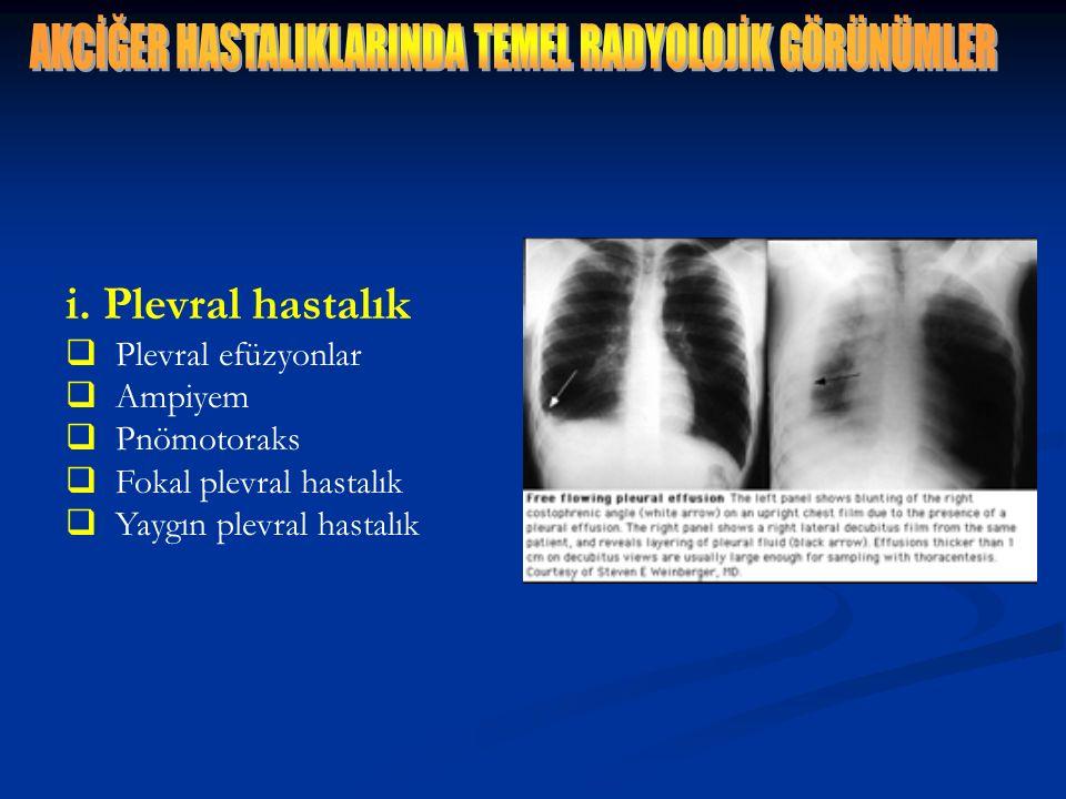 i. Plevral hastalık  Plevral efüzyonlar  Ampiyem  Pnömotoraks  Fokal plevral hastalık  Yaygın plevral hastalık
