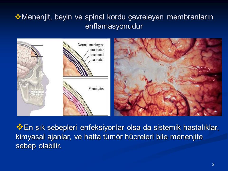 2  Menenjit, beyin ve spinal kordu çevreleyen membranların enflamasyonudur  En sık sebepleri enfeksiyonlar olsa da sistemik hastalıklar, kimyasal aj