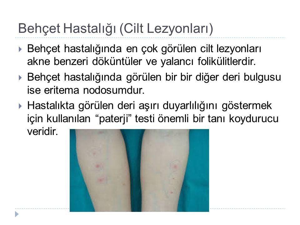 Behçet Hastalığı (Cilt Lezyonları)  Behçet hastalığında en çok görülen cilt lezyonları akne benzeri döküntüler ve yalancı folikülitlerdir.