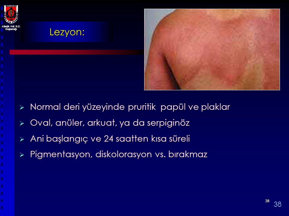 Allerjik Hst. B.D. Başkanlığı 3838 Lezyon:  Normal deri yüzeyinde pruritik papül ve plaklar  Oval, anüler, arkuat, ya da serpiginöz  Ani başlangıç