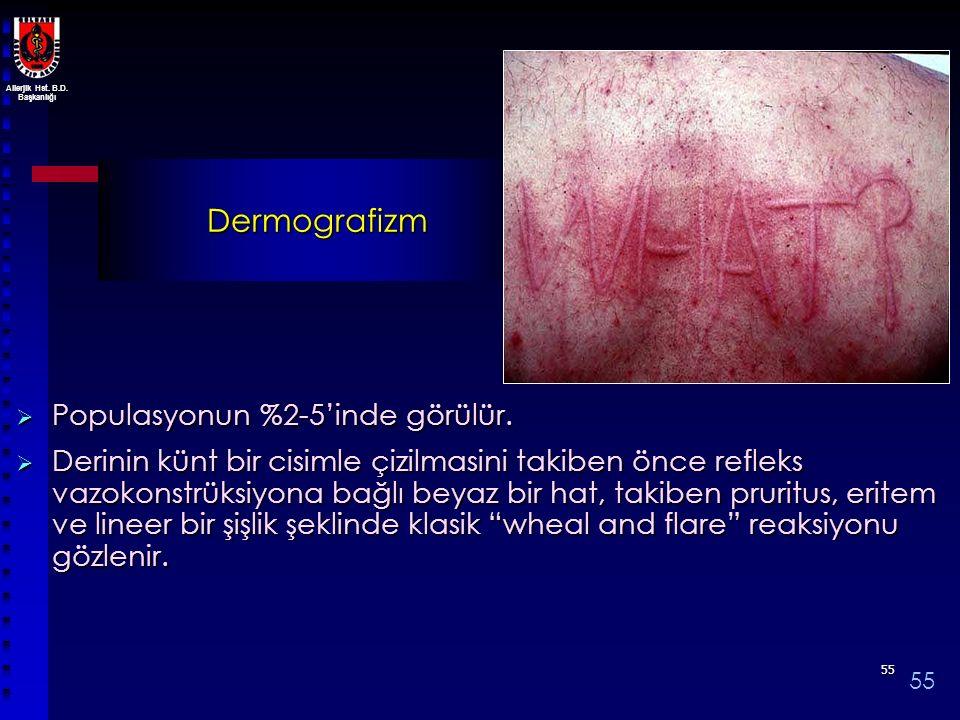 Allerjik Hst. B.D. Başkanlığı 5555 Dermografizm  Populasyonun %2-5'inde görülür.  Derinin künt bir cisimle çizilmasini takiben önce refleks vazokons