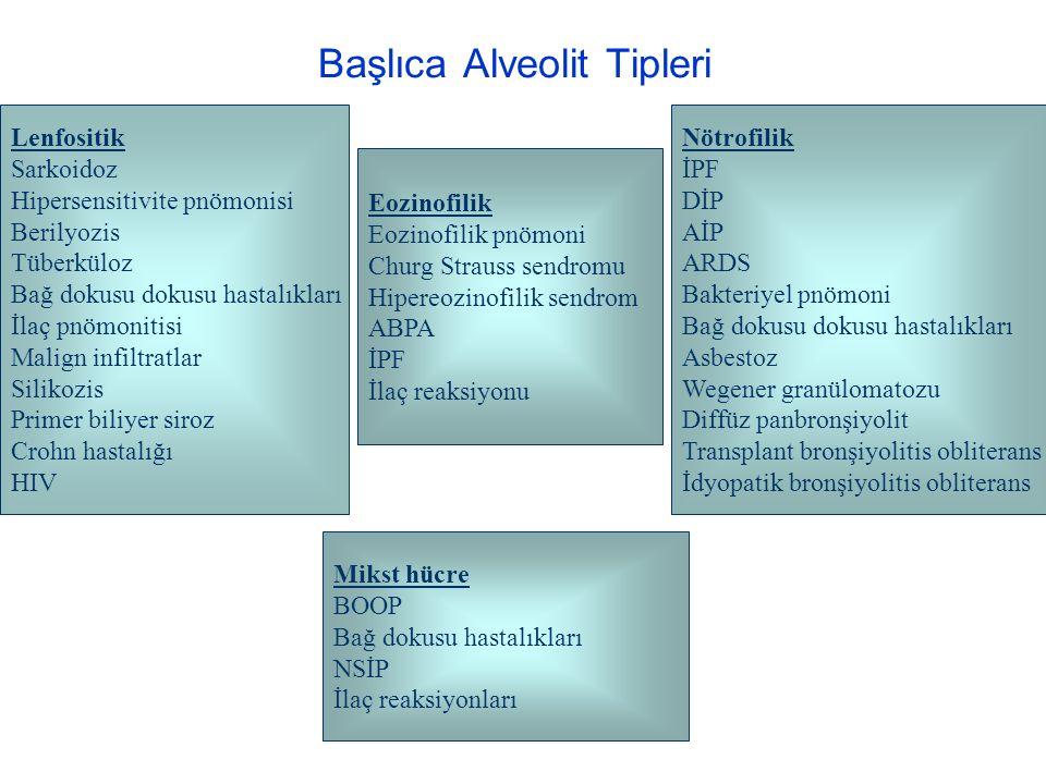 Başlıca Alveolit Tipleri Lenfositik Sarkoidoz Hipersensitivite pnömonisi Berilyozis Tüberküloz Bağ dokusu dokusu hastalıkları İlaç pnömonitisi Malign