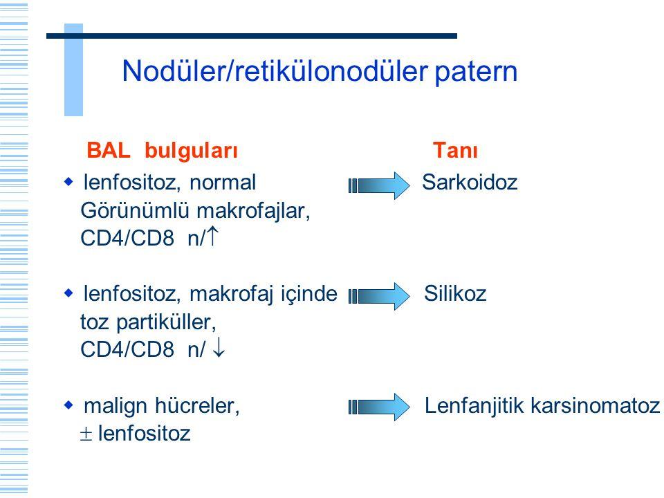 Nodüler/retikülonodüler patern BAL bulguları Tanı  lenfositoz, normal Sarkoidoz Görünümlü makrofajlar, CD4/CD8 n/   lenfositoz, makrofaj içinde Sil