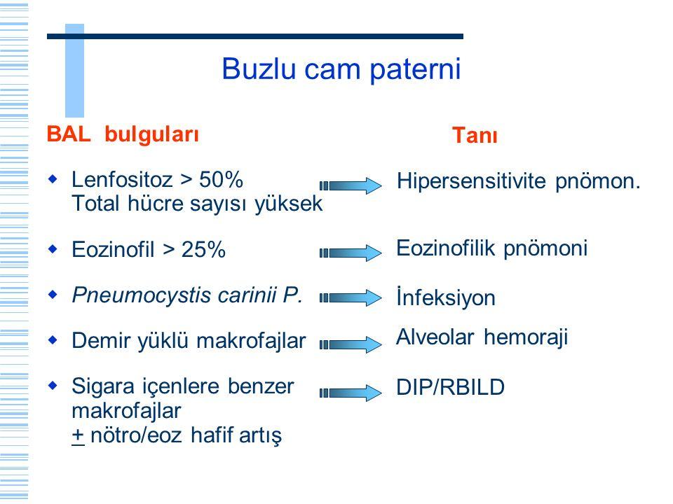 Buzlu cam paterni BAL bulguları  Lenfositoz > 50% Total hücre sayısı yüksek  Eozinofil > 25%  Pneumocystis carinii P.  Demir yüklü makrofajlar  S