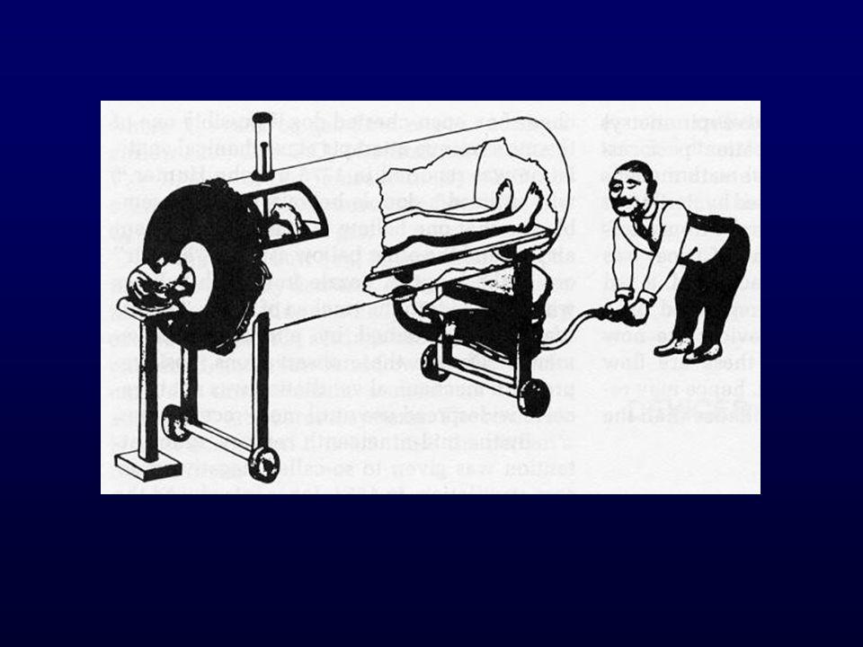 Basınç Limitli Ventilasyon (BiPAP)
