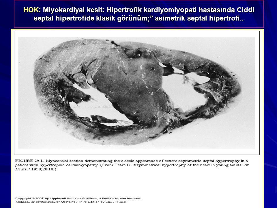 """HOK: Miyokardiyal kesit: Hipertrofik kardiyomiyopati hastasında Ciddi septal hipertrofide klasik görünüm;"""" asimetrik septal hipertrofi.."""
