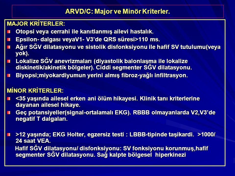 ARVD/C: Major ve Minör Kriterler. MAJOR KRİTERLER: Otopsi veya cerrahi ile kanıtlanmış ailevi hastalık. Epsilon- dalgası veyaV1- V3'de QRS süresi>110