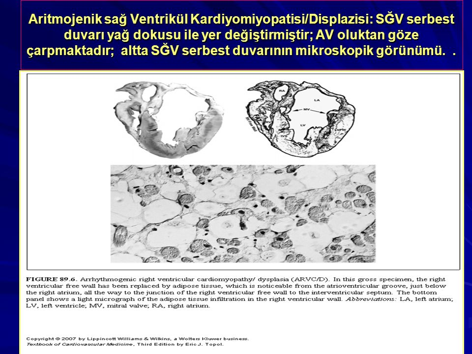 Aritmojenik sağ Ventrikül Kardiyomiyopatisi/Displazisi: SĞV serbest duvarı yağ dokusu ile yer değiştirmiştir; AV oluktan göze çarpmaktadır; altta SĞV