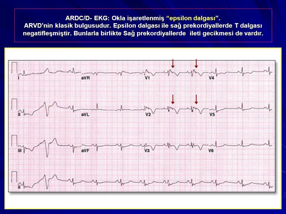 """ARDC/D- EKG: Okla işaretlenmiş """"epsilon dalgası"""". ARVD'nin klasik bulgusudur. Epsilon dalgası ile sağ prekordiyallerde T dalgası negatifleşmiştir. Bun"""