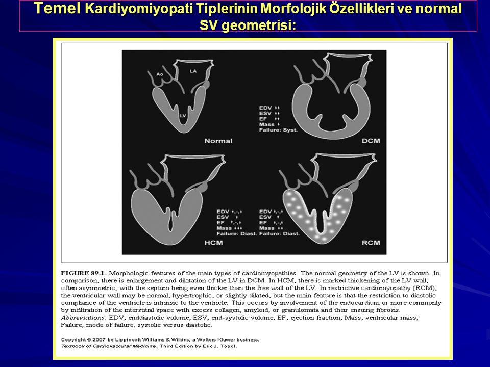 Temel Kardiyomiyopati Tiplerinin Morfolojik Özellikleri ve normal SV geometrisi: