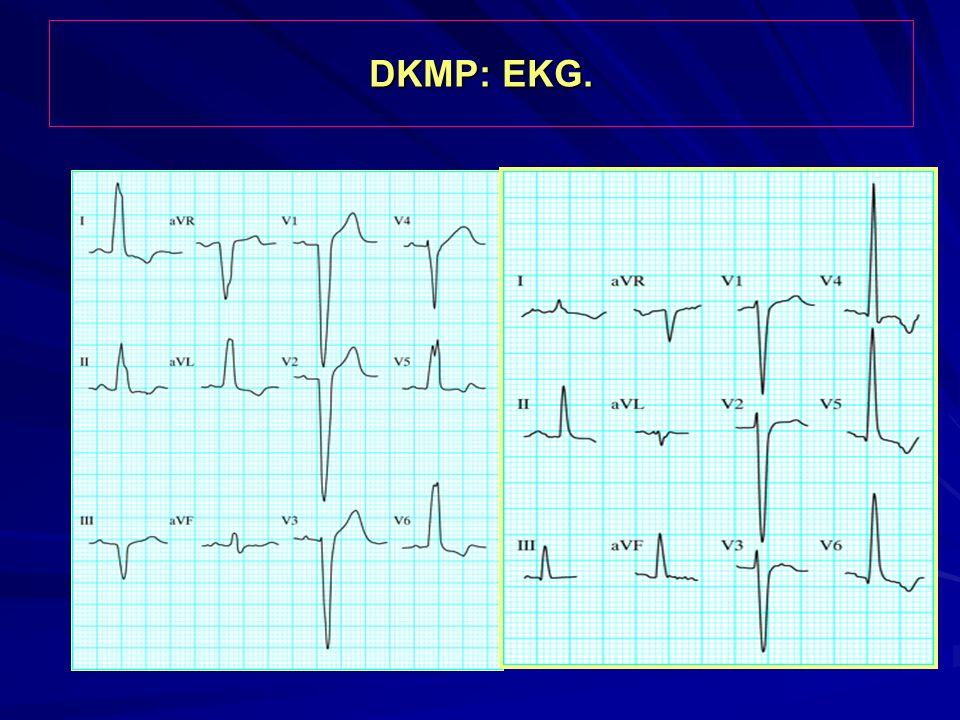 DKMP: EKG.