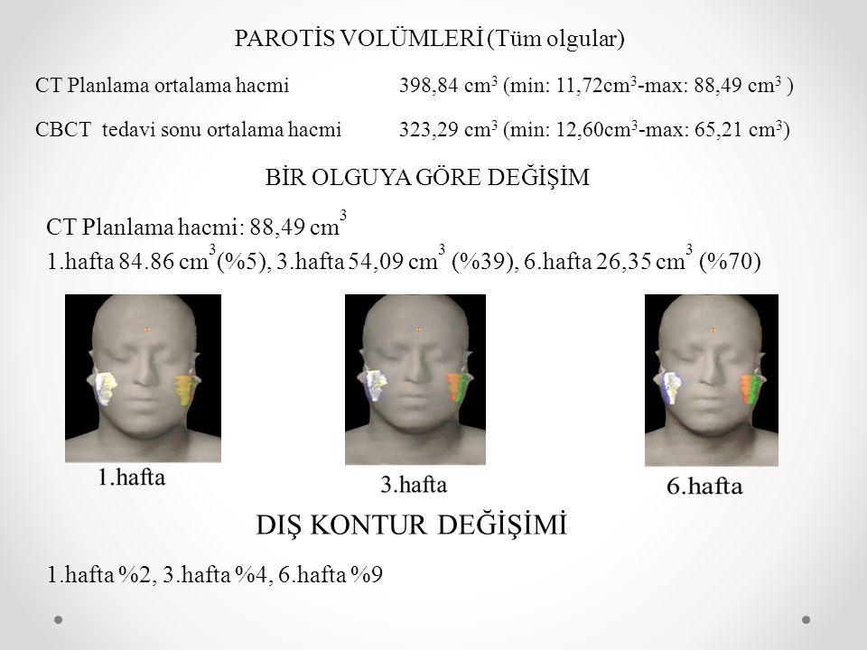 PAROTİS VOLÜMLERİ (Tüm olgular) CT Planlama ortalama hacmi398,84 cm 3 (min: 11,72cm 3 -max: 88,49 cm 3 ) CBCT tedavi sonu ortalama hacmi323,29 cm 3 (m