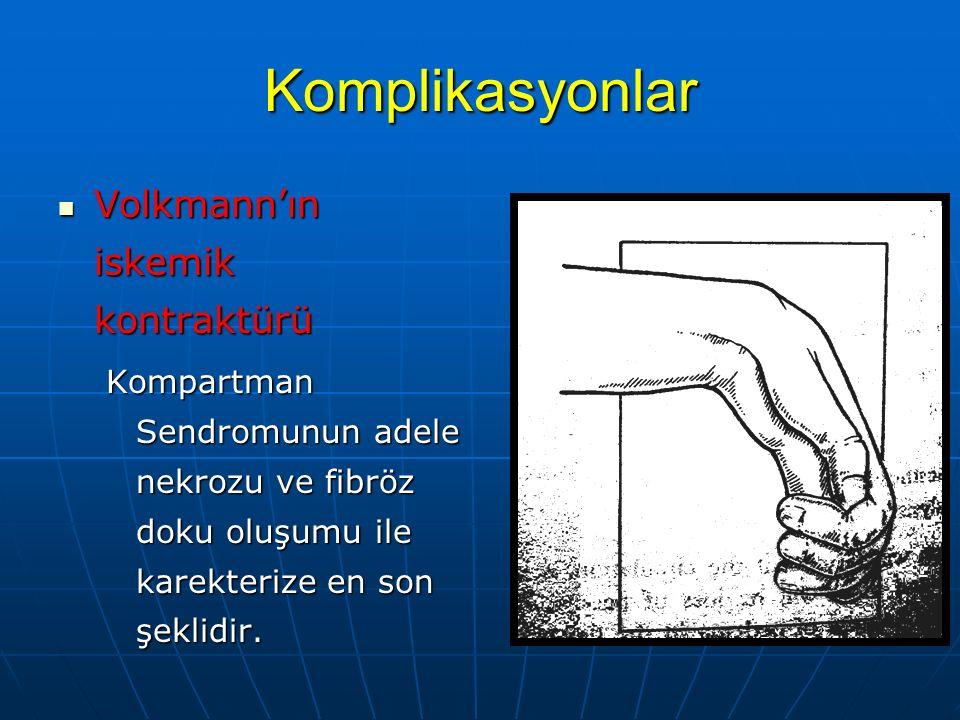 Komplikasyonlar Volkmann'ın iskemik kontraktürü Volkmann'ın iskemik kontraktürü Kompartman Sendromunun adele nekrozu ve fibröz doku oluşumu ile karekt