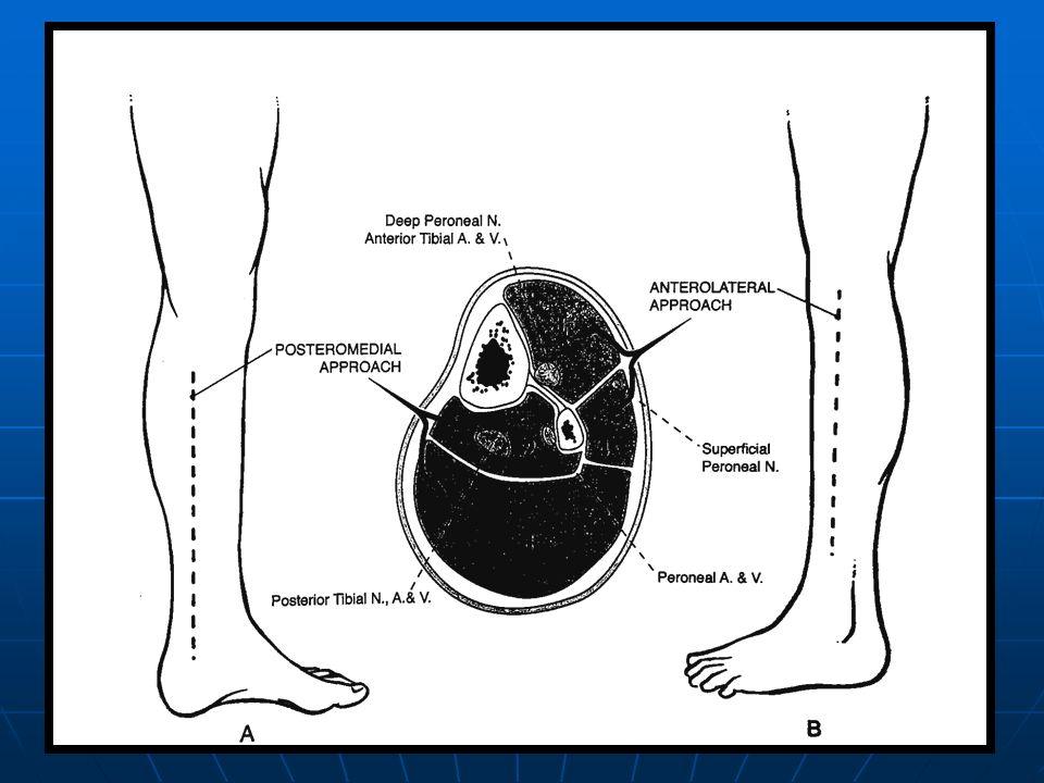 Komplikasyonlar Volkmann'ın iskemik kontraktürü Volkmann'ın iskemik kontraktürü Kompartman Sendromunun adele nekrozu ve fibröz doku oluşumu ile karekterize en son şeklidir.