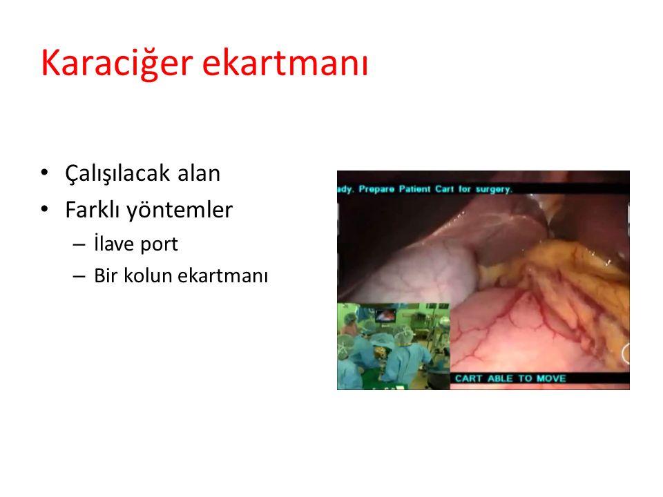 Karaciğer ekartmanı Çalışılacak alan Farklı yöntemler – İlave port – Bir kolun ekartmanı