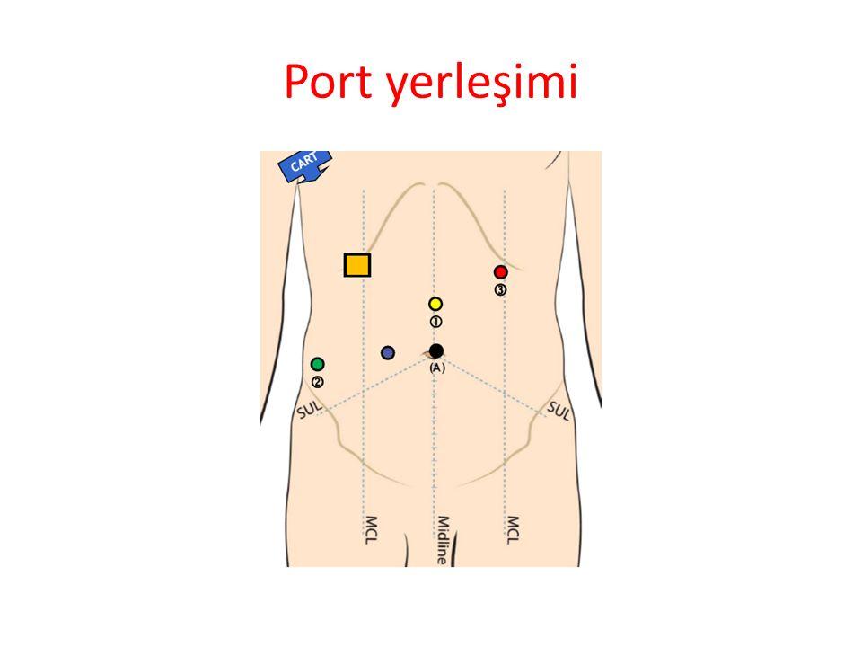 Port yerleşimi