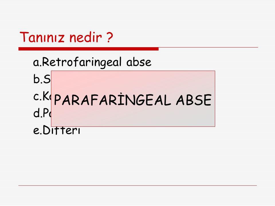 Tanınız nedir ? a.Retrofaringeal abse b.Servikal lenfadenit c.Kabakulak d.Parafaringeal abse e.Difteri PARAFARİNGEAL ABSE