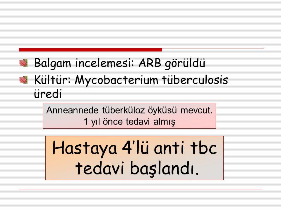 Balgam incelemesi: ARB görüldü Kültür: Mycobacterium tüberculosis üredi Anneannede tüberküloz öyküsü mevcut.