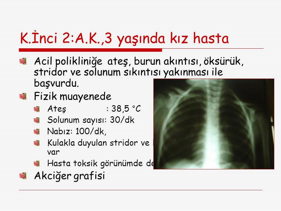 K.İnci 2:A.K.,3 yaşında kız hasta Acil polikliniğe ateş, burun akıntısı, öksürük, stridor ve solunum sıkıntısı yakınması ile başvurdu. Fizik muayenede