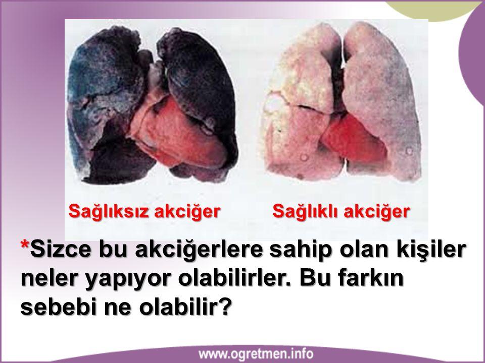 Sağlıksız akciğer Sağlıklı akciğer *Sizce bu akciğerlere sahip olan kişiler neler yapıyor olabilirler. Bu farkın sebebi ne olabilir?