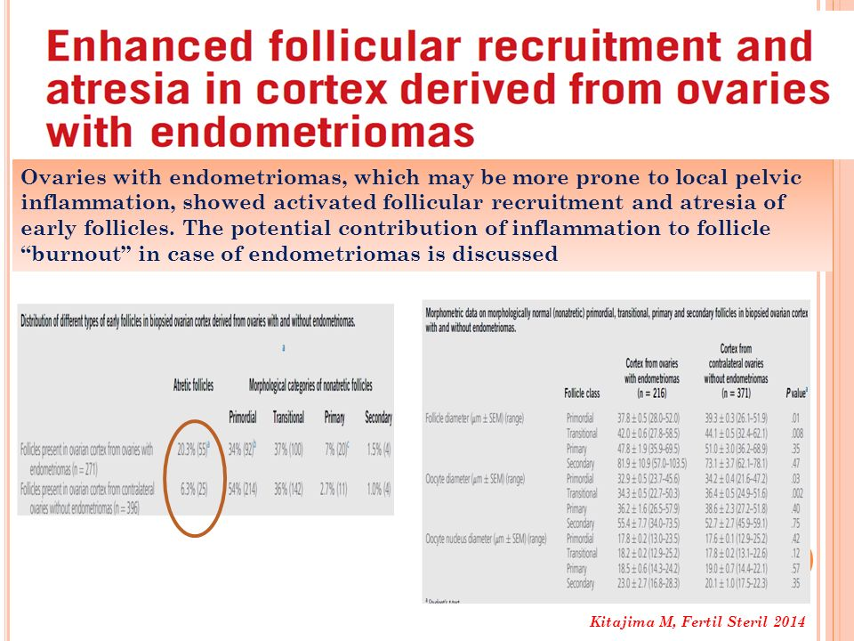 Kitajima M, Fertil Steril 2014 Ovaries with endometriomas, which may be more prone to local pelvic inflammation, showed activated follicular recruitme