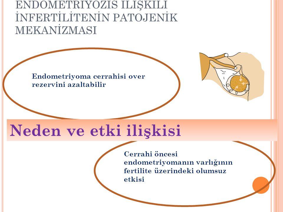 Endometriyoma cerrahisi over rezervini azaltabilir Cerrahi öncesi endometriyomanın varlığının fertilite üzerindeki olumsuz etkisi ENDOMETRİYOZİS İLİŞKİLİ İNFERTİLİTENİN PATOJENİK MEKANİZMASI Neden ve etki ilişkisi