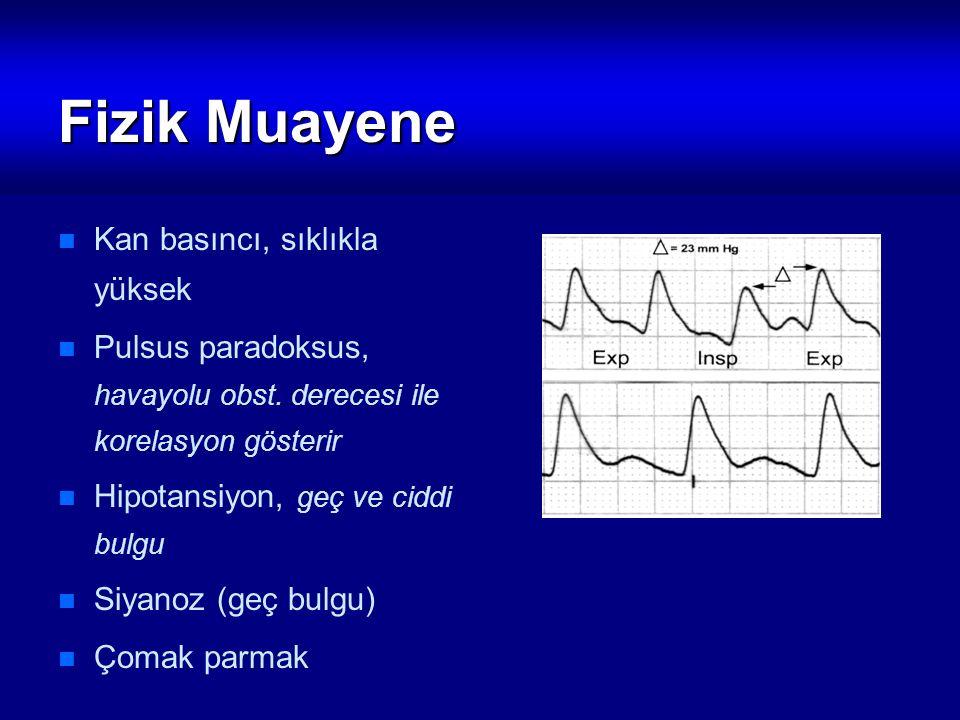Fizik Muayene Kan basıncı, sıklıkla yüksek Pulsus paradoksus, havayolu obst. derecesi ile korelasyon gösterir Hipotansiyon, geç ve ciddi bulgu Siyanoz
