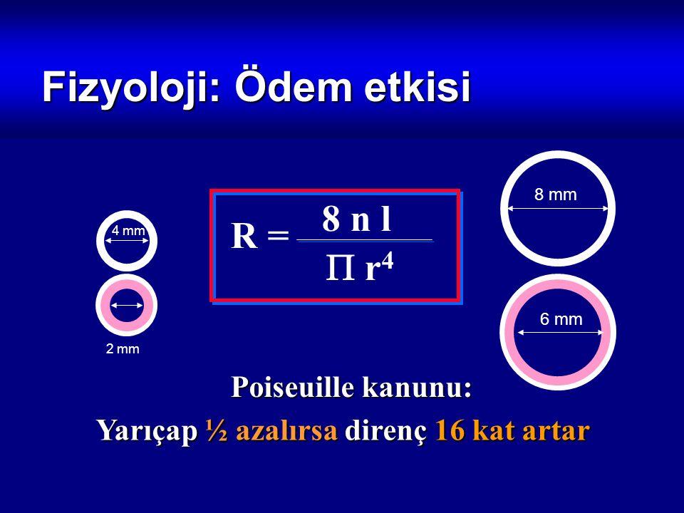 Fizyoloji: Ödem etkisi Poiseuille kanunu: Yarıçap ½ azalırsa direnç 16 kat artar R = 8 n l  r4 r4 8 mm 4 mm 2 mm 6 mm
