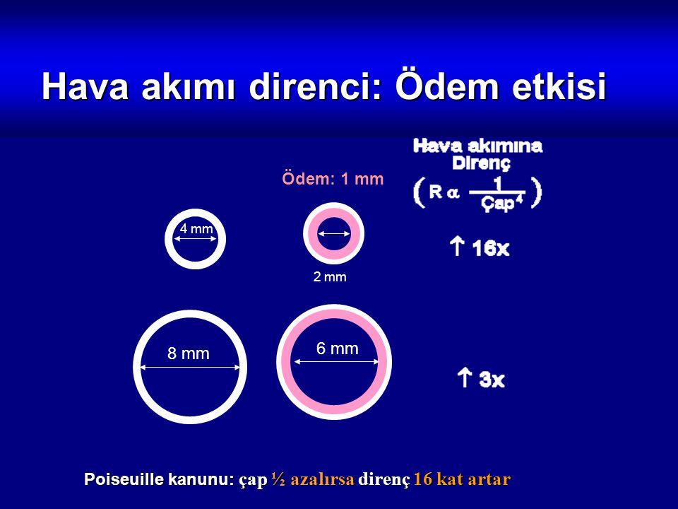 Hava akımı direnci: Ödem etkisi 4 mm 8 mm Poiseuille kanunu: çap ½ azalırsa direnç 16 kat artar 2 mm 6 mm Ödem: 1 mm