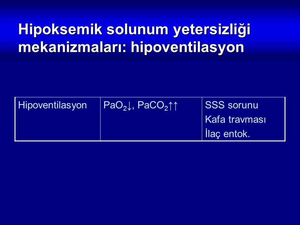 HipoventilasyonPaO 2 ↓, PaCO 2 ↑↑SSS sorunu Kafa travması İlaç entok. Hipoksemik solunum yetersizliği mekanizmaları: hipoventilasyon