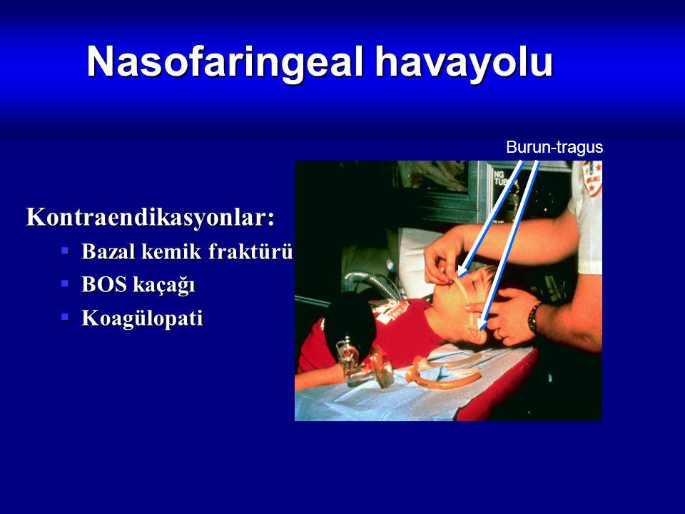 Nasofaringeal havayolu Kontraendikasyonlar:  Bazal kemik fraktürü  BOS kaçağı  Koagülopati Burun-tragus