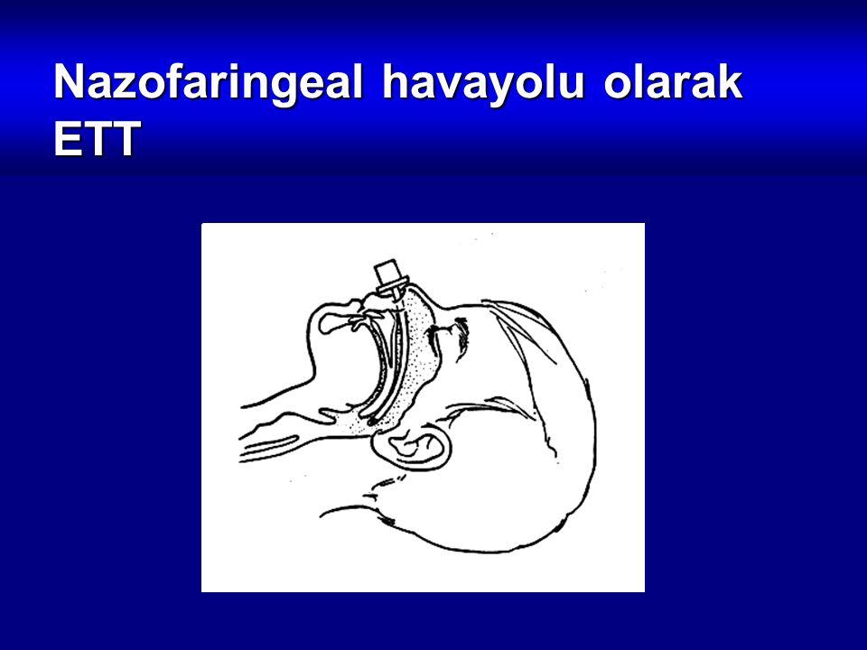 Nazofaringeal havayolu olarak ETT