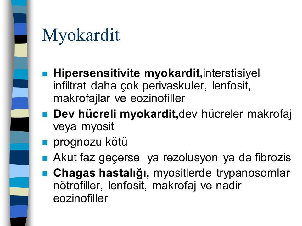 Myokardit n Hipersensitivite myokardit,interstisiyel infiltrat daha çok perivaskuler, lenfosit, makrofajlar ve eozinofiller n Dev hücreli myokardit,de